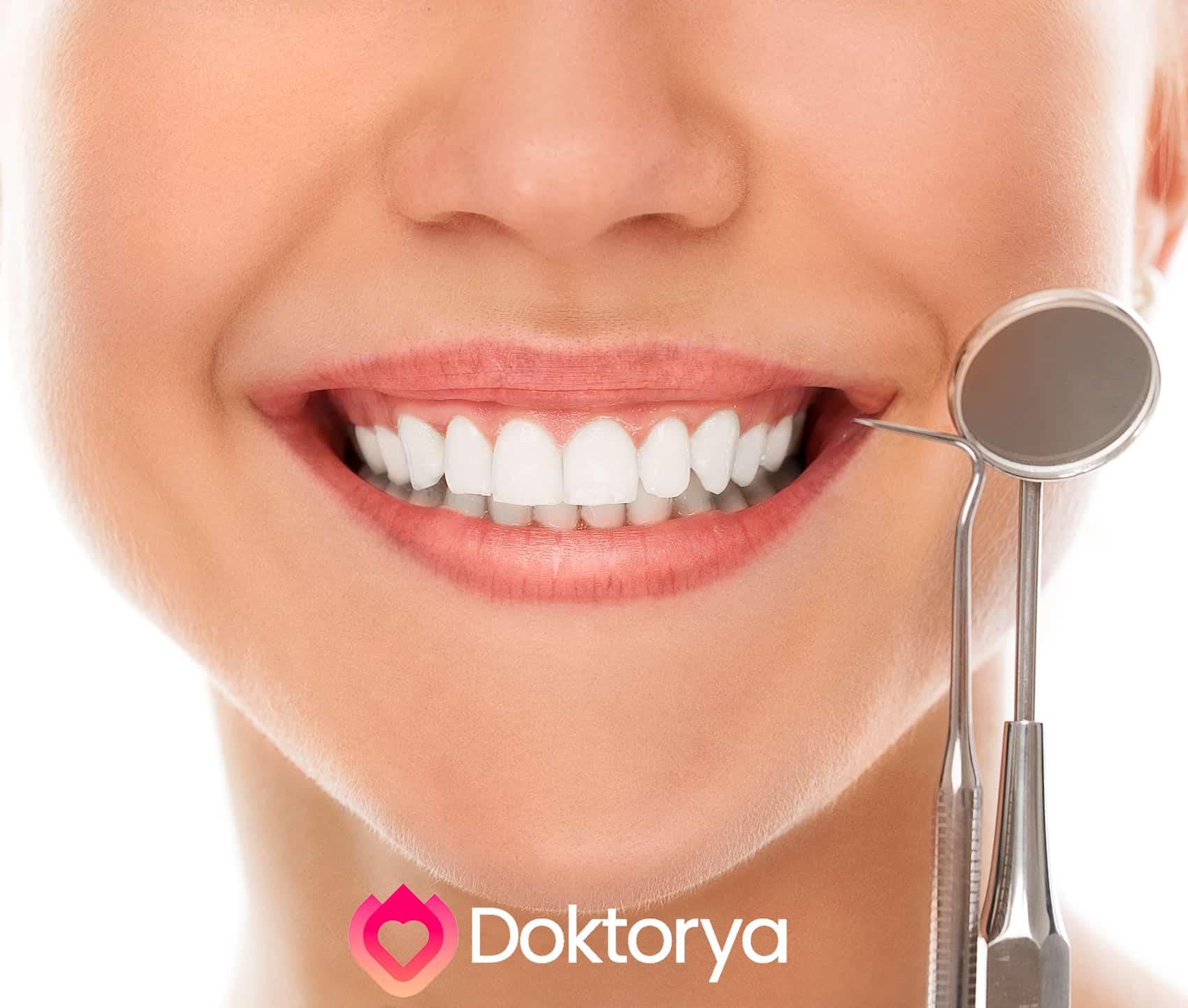 Diş kaplama fiyatı